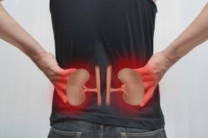 Risiko ginjal - asuransi kesehatan - CekAJa.com